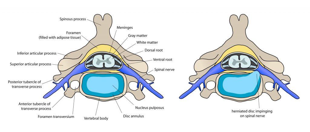 Der Querschnitt einer Bandscheibe ohne Bandscheibenvorfall.