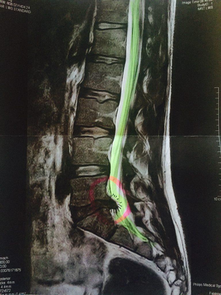 CT-Bild eines Bandscheibenvorfalls